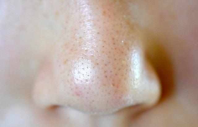 メンズの肌ケア 毛穴タイプ診断で原因と対策を